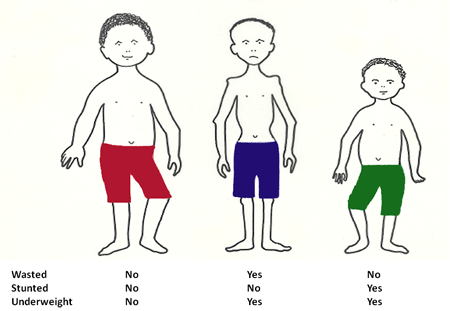assessment of malnutrition in children under 3nutrition assessment 4nutritional status 5child development 6  high  prevalence levels of stunting among children under-five years of.