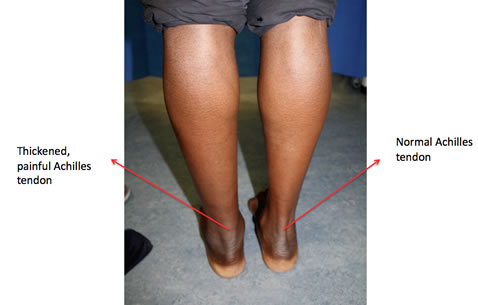 recognising managing achilles tendinopathy in footballers zambia