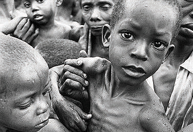 sadc faces 3 forms of malnutrition zambia daily mail